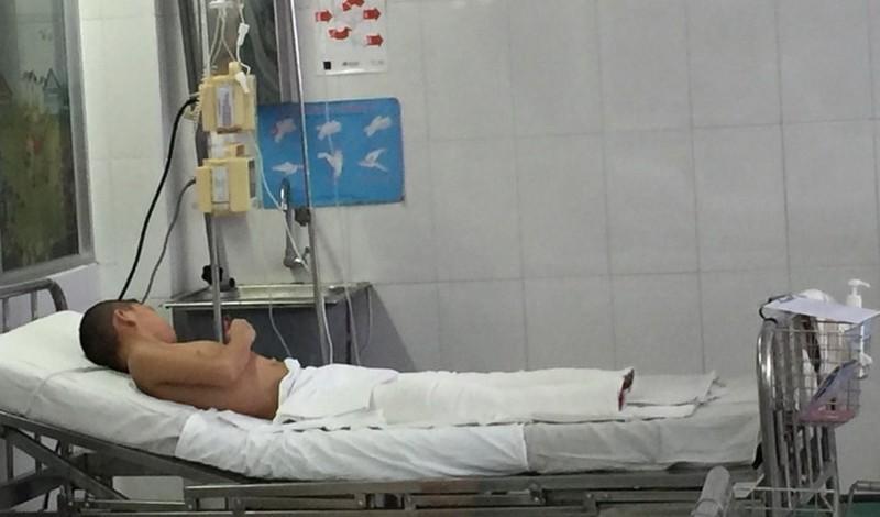 Bé trai tám tuổi bỏng nặng do ngã vào đống trấu đang un - ảnh 1