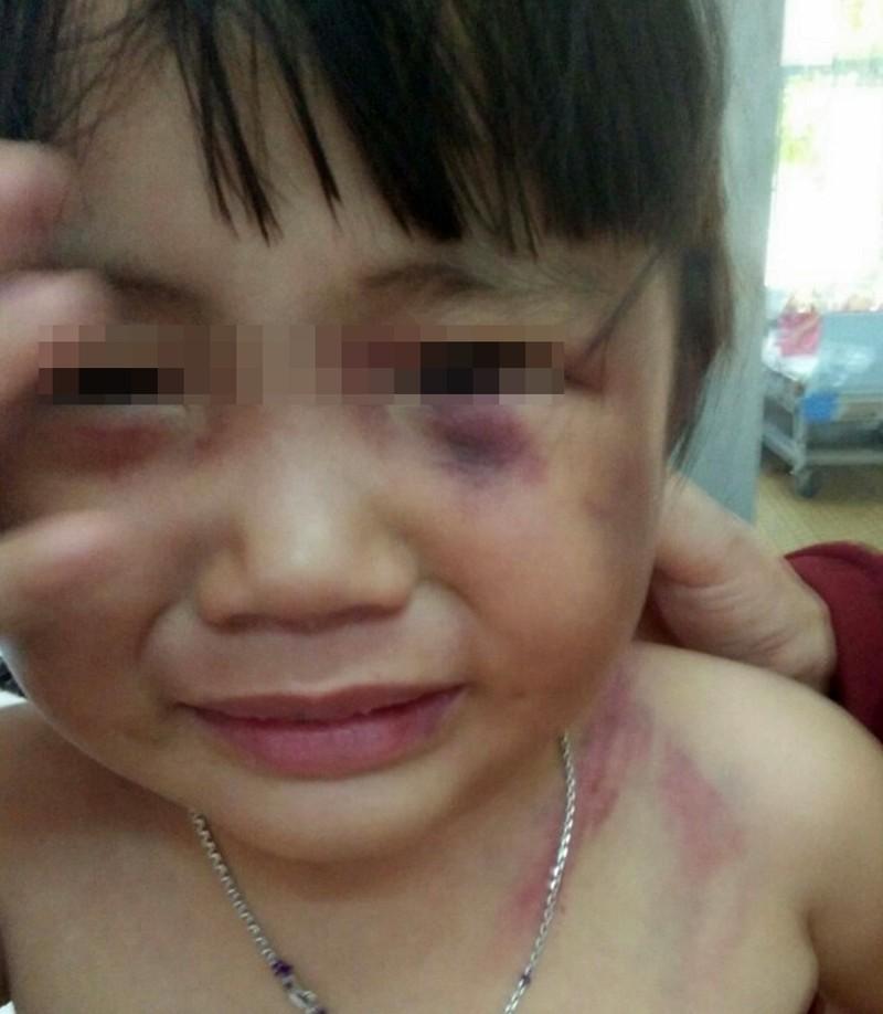 Bé gái ba tuổi bị cha dượng đánh dã man để 'trả thù'! - ảnh 1