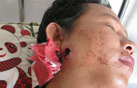 Vụ công an xã bắn người bị còng tay: Người bị bắn được tuyên trắng án - ảnh 1