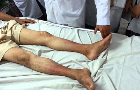 Trị bệnh cho chân bằng sóng cao tần - ảnh 1