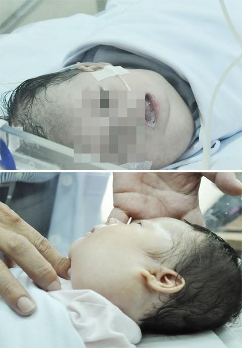 Xót xa 2 bé sơ sinh mắc bệnh hiểm nghèo làm biến dạng khuôn mặt  - ảnh 1