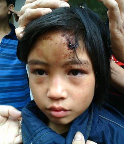 Giải cứu bé gái bị nhốt trong chùa  - ảnh 1