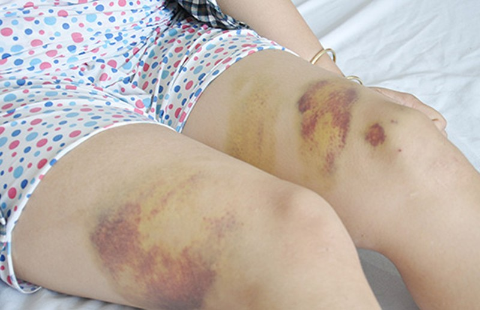 Công an đánh nữ công nhân: 'Tôi nóng quá' - ảnh 1