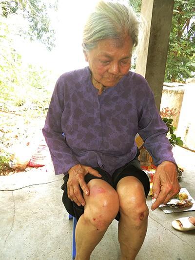 Bà cụ 82 tuổi sống trong sợ hãi - ảnh 1