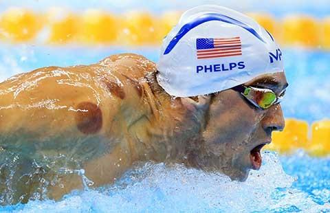 Giác hơi Trung Quốc 'gây bão' tại Olympic Rio - ảnh 1