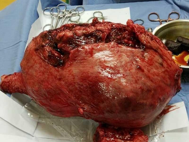 Mổ lấy thai 3,2 kg cùng khối u nặng gần 6 kg - ảnh 2