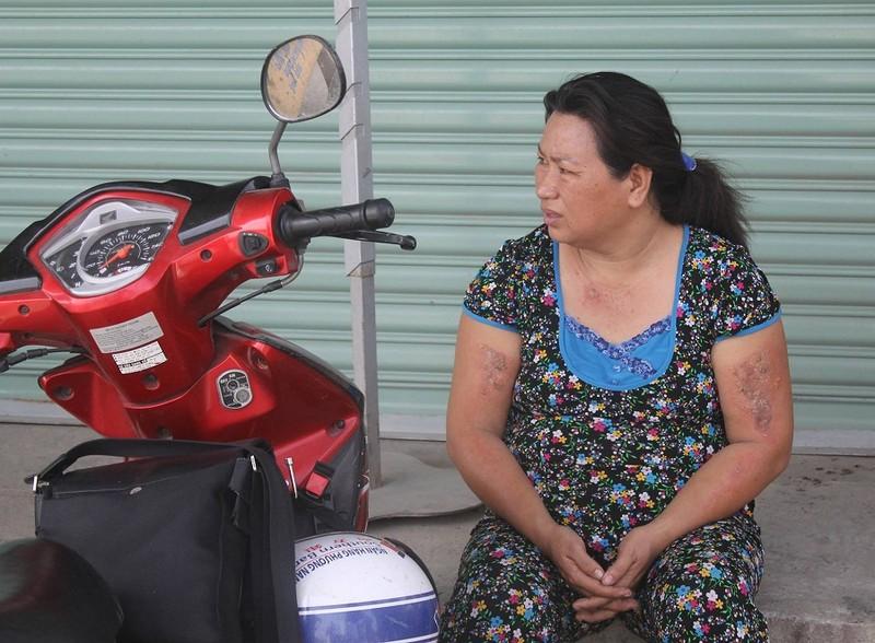 Sau vụ cháy đầu năm, người dân lao đao  - ảnh 6