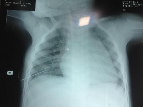 Bé 3 tuổi bị thủng phổi vì kim đâm xuyên ngực - ảnh 1