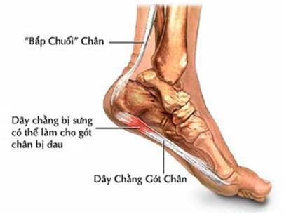 Bị đau thốn gót chân là bệnh gì? - ảnh 1