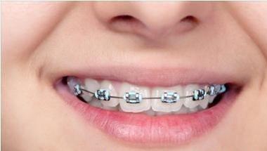 Cách giảm đau buốt sau khi niềng răng - ảnh 1