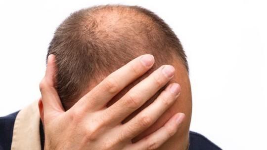 Hói đầu và ung thư tuyến tiền liệt: Có liên quan! - ảnh 1
