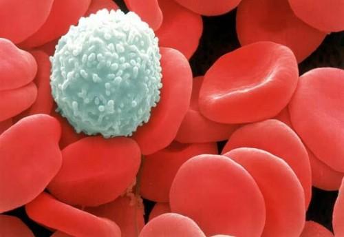 Dấu hiệu bệnh ung thư máu và cách điều trị - ảnh 1