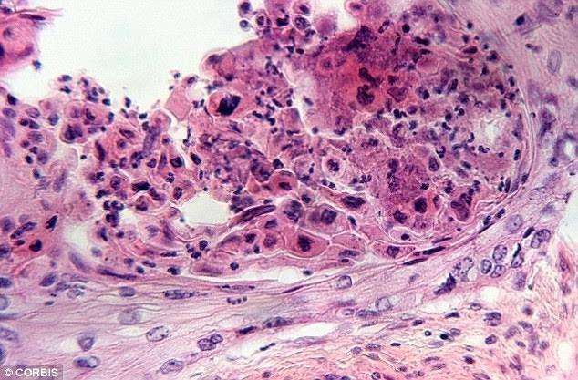 Những dấu hiệu cảnh báo ung thư ở phụ nữ - ảnh 1