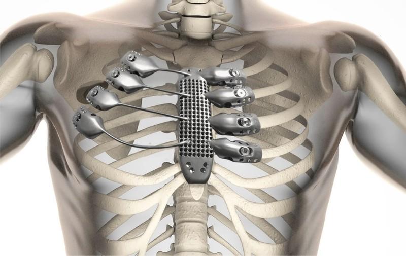 In xương lồng ngực bằng kỹ thuật 3D - ảnh 1
