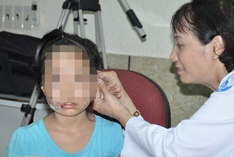 Lại một trẻ bị chó cắn nát mặt phải khâu hơn 200 mũi - ảnh 1