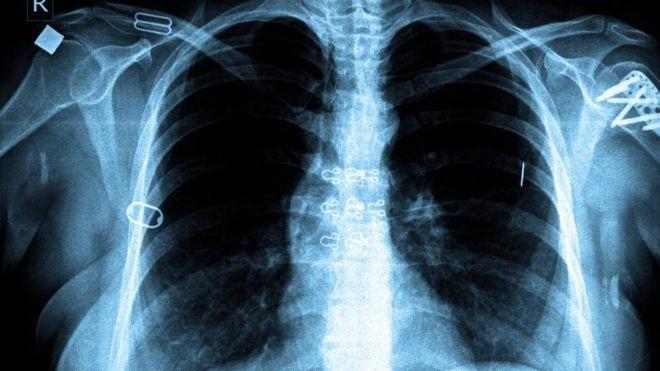 Bệnh nào gây tử vong hàng đầu thế giới? - ảnh 2