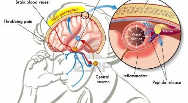 Những loại thuốc trị chứng đau nửa đầu - ảnh 1