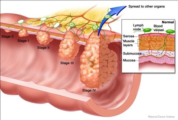 Những nguyên nhân gây ung thư trực tràng  - ảnh 3