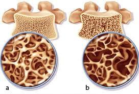 Phân biệt bệnh nhuyễn xương và loãng xương - ảnh 1