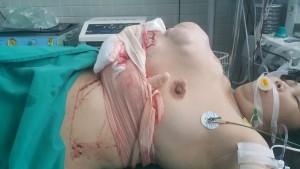 Cứu sống bệnh nhân mang u xương ức to bằng cái tô - ảnh 1