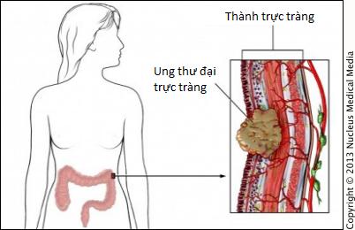 6 cách giảm nguy cơ bị ung thư trực tràng - ảnh 1