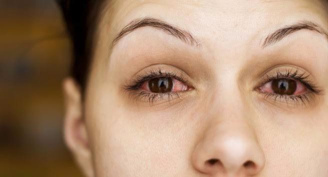Nếu mắt thường xuyên bị đỏ, bạn nên tới gặp bác sĩ.