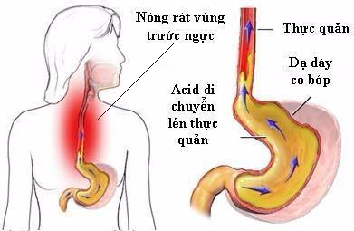 dấu hiệu của bệnh dạ dày