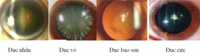 Bệnh đục thủy tinh thể và biện pháp phòng ngừa - ảnh 2