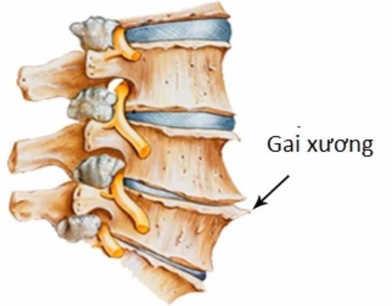 Thoái hóa đĩa đệm cột sống là một nguyên nhân hình thành gai xương cột sống