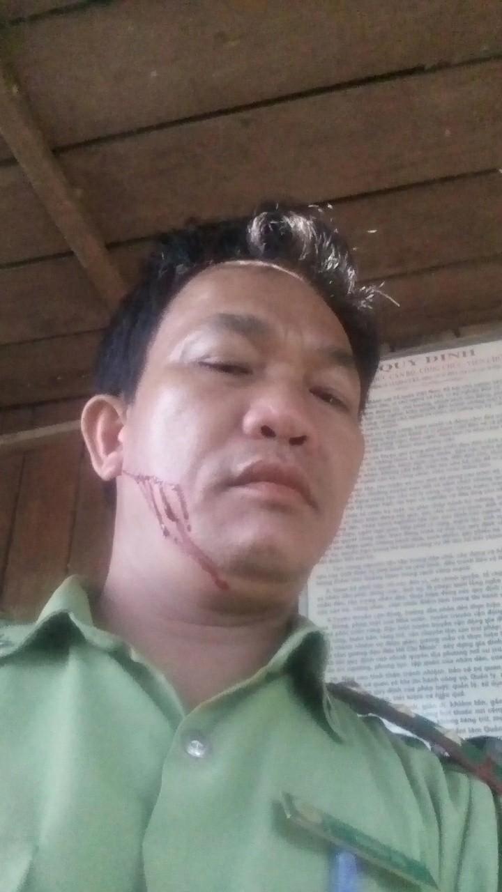 Ông Thà bị chém vào mặt dẫn đến thương tích.