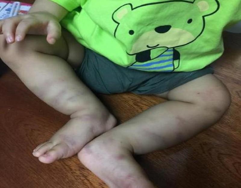 Tìm được người bỏ rơi bé trai 1 tuổi bị bạo hành dã man - ảnh 2