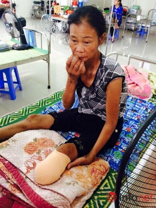 Một tuần bị nhọt, nhập viện bị cắt chân ngay lập tức - ảnh 1