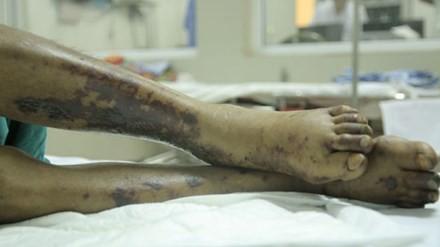 Tổn thương hoại tử trên da điển hình của bệnh nhân nhiễm trùng huyết do liên cầu lợn. Ảnh minh họa: H.Hải